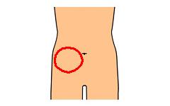 腹部 右 チクチク 下 痛み